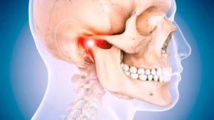 Çene Eklemi Rahatsızlıkları Kayropraktik ve Osteopati Tedavi