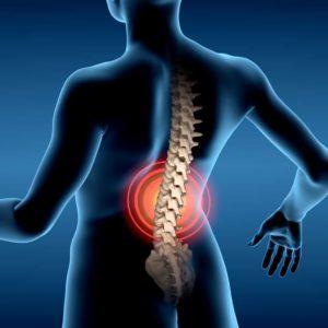 Bel Ağrısı ve Bel fıtığında Kayropraktik ve Osteopati tedavisi